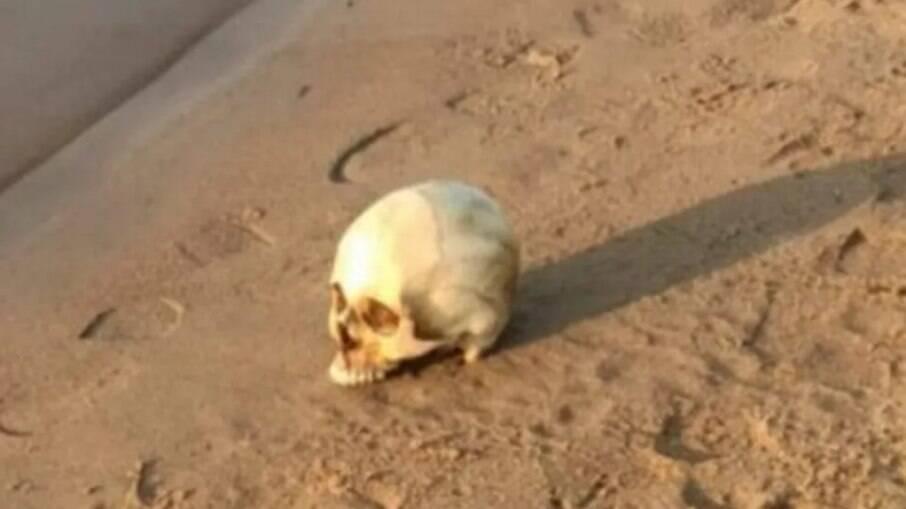 Crânio encontrava-se com dentes e aparelho ortodôntico