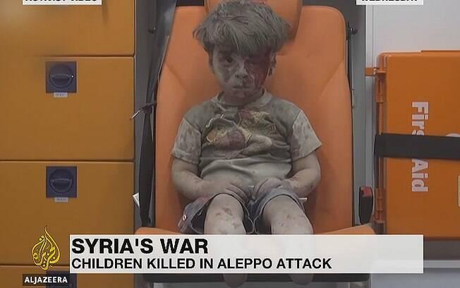 Imagem do menino foi captada após resgate em prédio bombardeado em Aleppo; criança se recupera com a família