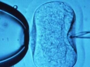 Médicos elaboram técnica de fertilização de baixo custo