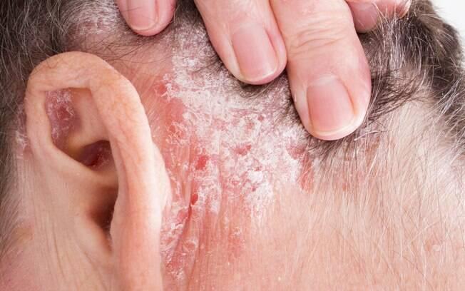 Psoríase é uma doença inflamatória da pele crônica e não contagiosa, com incidência genética em cerca de 30% dos casos