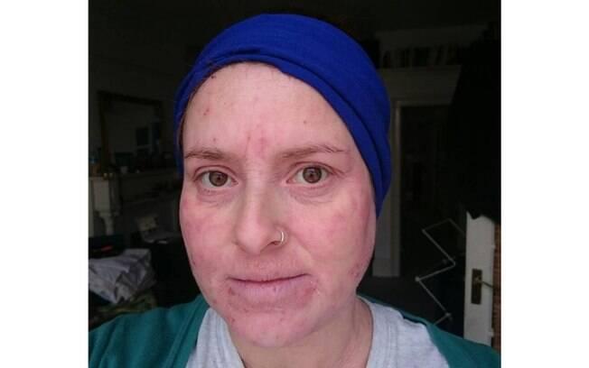 Nada de medicamentos! O remédio encontrado por Maria para diminuir a alergia foi mudar os hábitos de vida