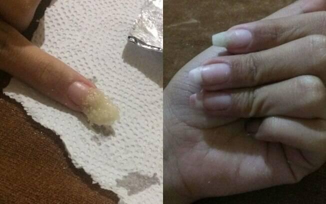 A internauta compartilhou no Twitter um tutorial de como consertar unha quebrada usando macarrão instantâneo