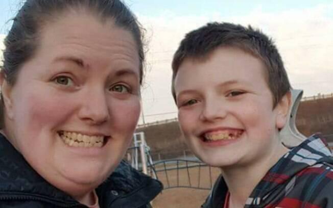 Logan, de 13 anos, tem autismo e sofreu com comentários preconceituosos em um dia de passeio no zoológico