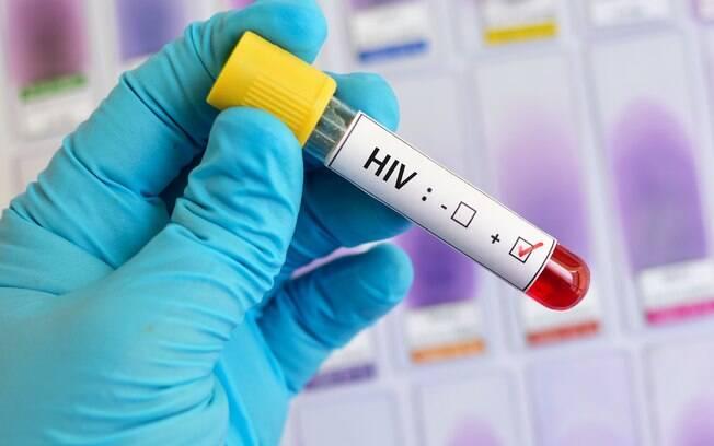 Conhecer as formas de transmissão do HIV é importante para o controle do vírus