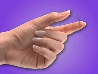 Implante: esterilização sem cirurgia