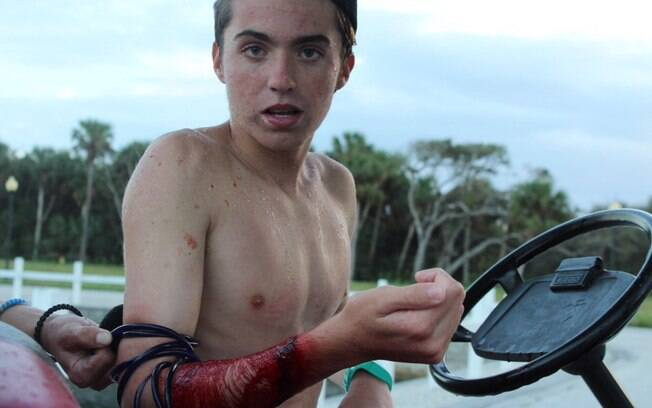 Zack Davis, logo após ser atacado por tubarão