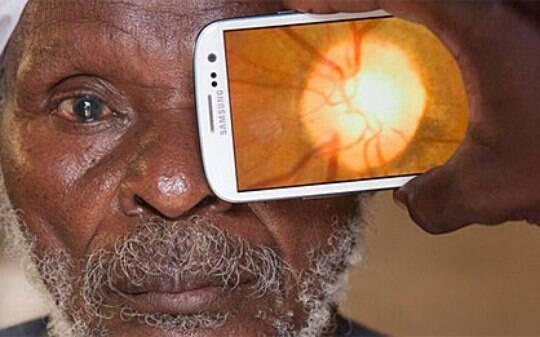 Aplicativo transforma celular em oftalmologista portátil - Minha Saúde - iG