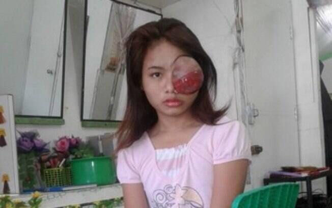 Com o tempo o tumor cresceu e a visão de Sophia ficou prejudicada