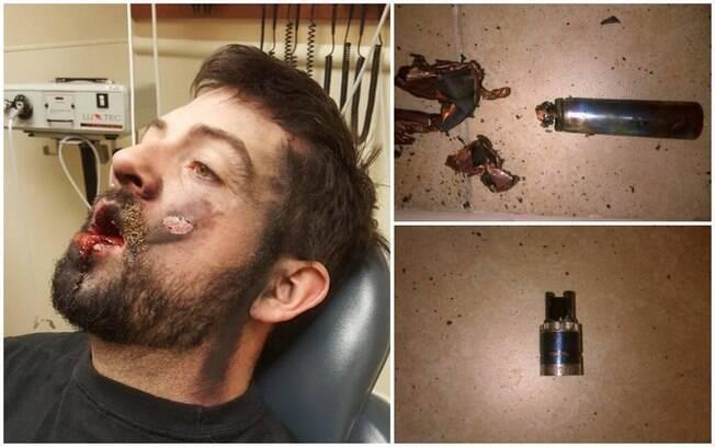 Incidente com cigarro eletrônico deixou usuário com queimaduras de segundo grau e sete dentes a menos