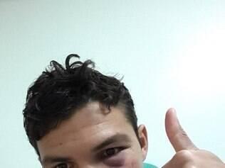Thiago mostra rosto inchado e agradece fãs