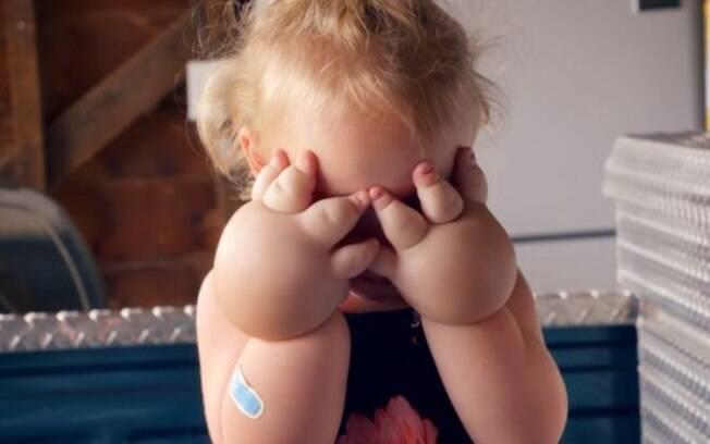 Cora já fez a lipoaspiração e segue em recuperação, mas a mãe dela afirma que já vê diferença nas mãos da filha