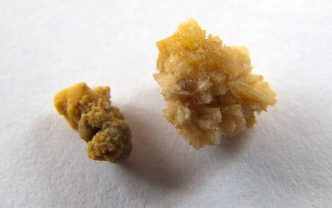 Exemplo de pedras que podem se formar nos rins, devido à grande quantidade de ácido úrico no organismo