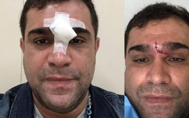 Evandro Santo mostra o rosto machucado após levar tombo no banheiro