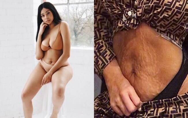 Chelsea Outram resolveu expor suas estrias na barriga no Instagram e muitas mães se sentiram representadas por ela