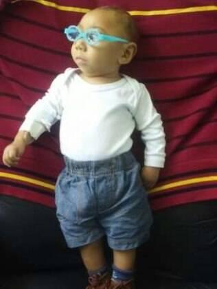 Aos oito meses, José Wesley já usa óculos e faz sessões de fisioterapia regulares