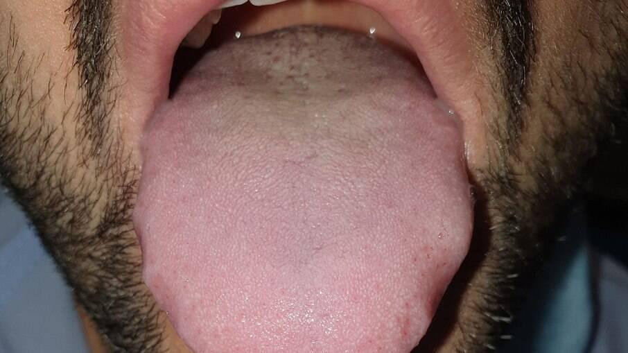 Língua dilatada e com marcas dos dentes nas laterais de um paciente com Covid-19