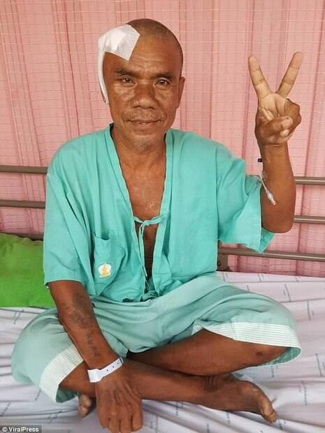 Tailandês também teve um tumor de quase dois quilos retirado de seu rosto e sobreviveu