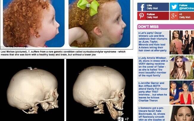 Lexi Melton passou por uma reconstrução a face