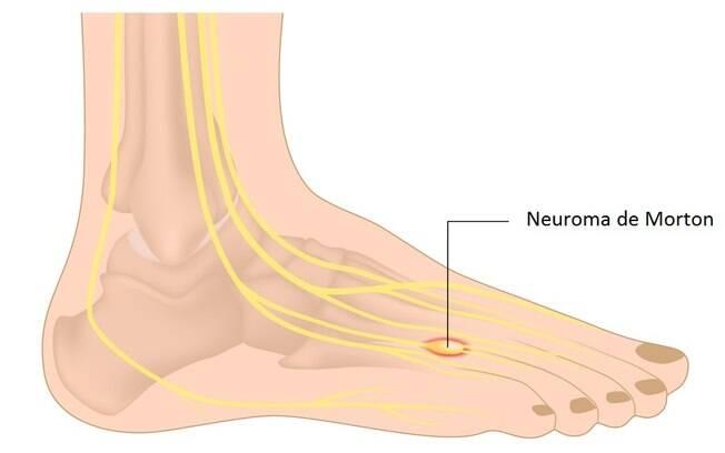 O neuroma de Morton causa intensas dores no pé afetado; condição pode ser evitada ao utilizar calçados apropriados