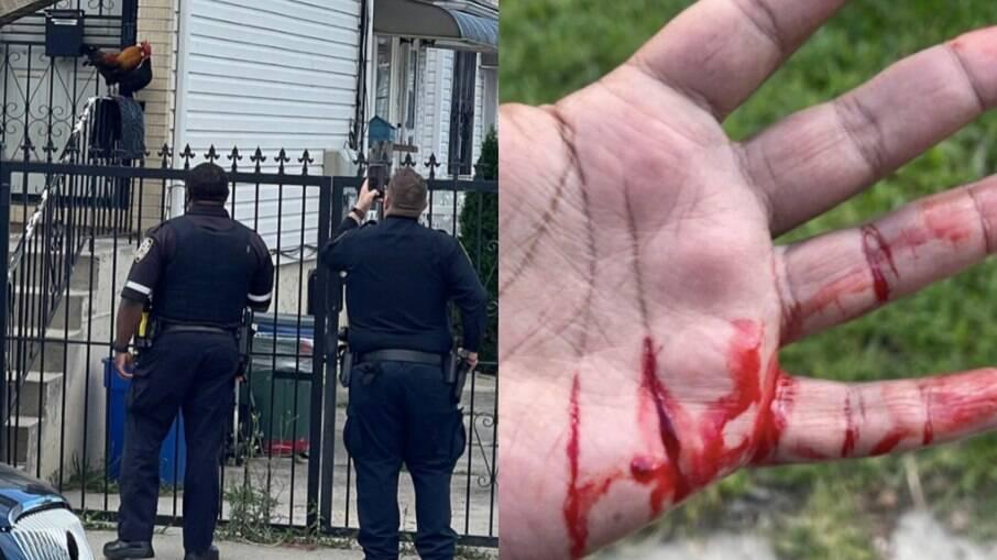 Policiais cercando o animal e mão do homem que foi atacado