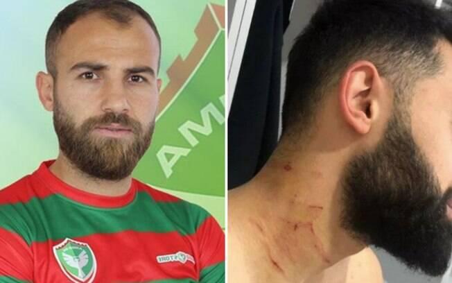 Jogador turco Mansur Çalar (à esquerda) foi acusado de atacar rivais com lâmina. À direita, atleta mostra ferimentos