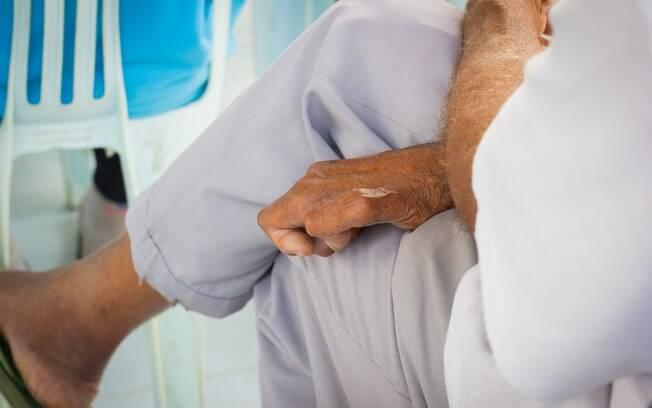 Quando não há tratamento, a hanseníase atinge a pele e nervos periféricos, podendo causar incapacidade física