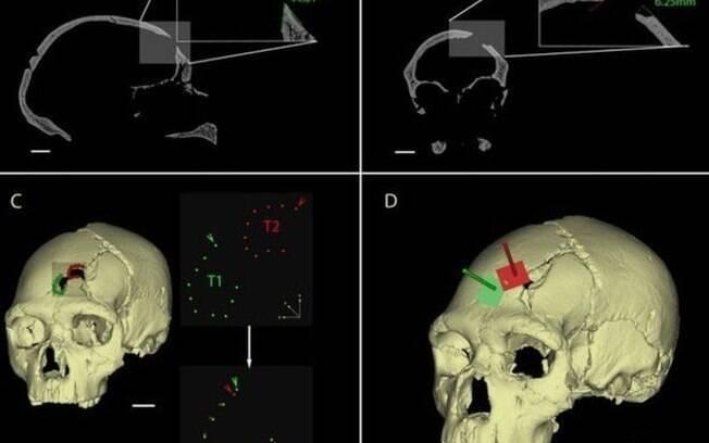 Ferimentos no crânio de um ancestral encontrado na Espanha mostram que ele foi morto por outro hominídeo