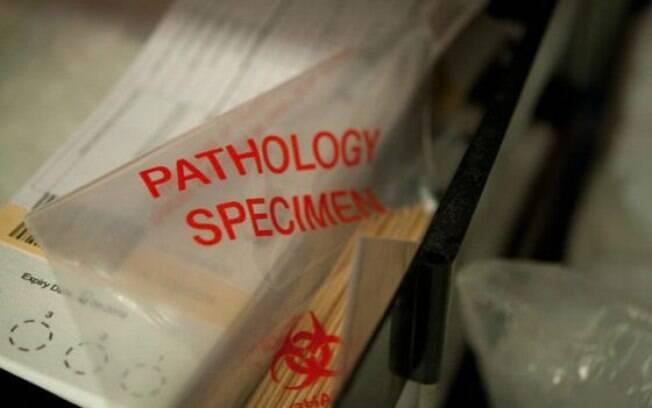 Exames necroscópicos ajudariam melhorar tratamentos para doenças graves, segundo médicos