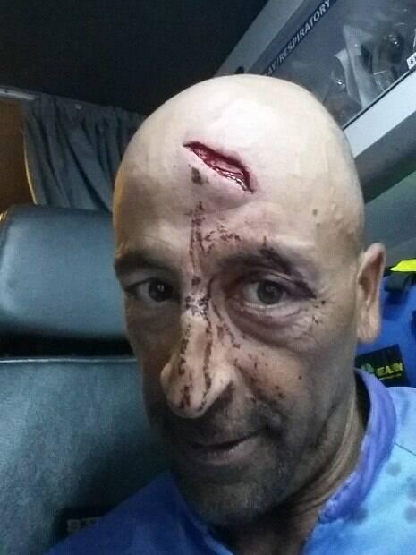 Capitão Oliver Galea sofreu grande corte na testa