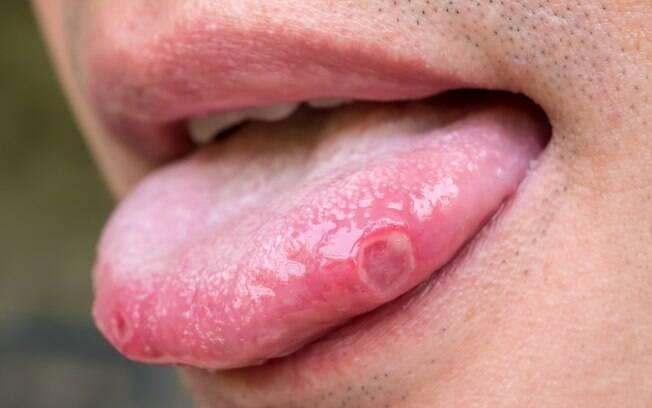 A língua pode revelar sinais de doenças como gastrite, diabetes e anemia