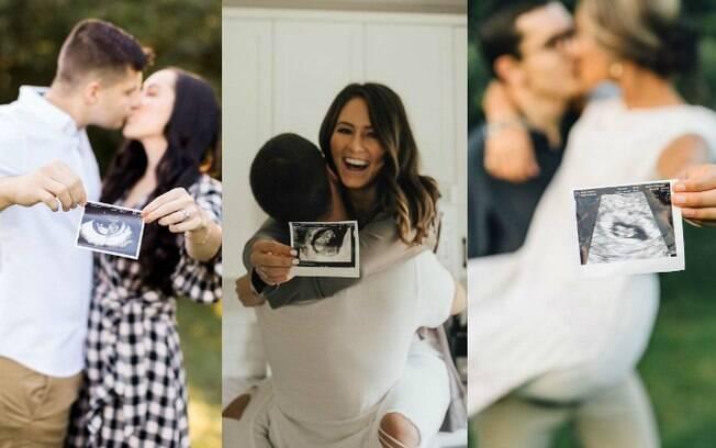 Mostrar a imagem da ultrassonografia é uma das formas mais tradicionais de se anunciar uma gravidez aos amigos e família