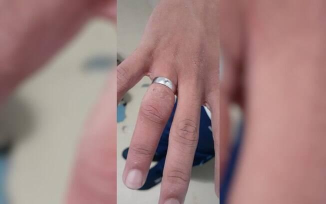Adolescente passou por dois hospitais que não conseguiram remover o anel