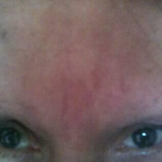 Rosângela perdeu as sobrancelhas após um processo alérgico