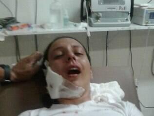 Uma guarda ficou ferida após ser atingida no rosto por uma bala de borracha