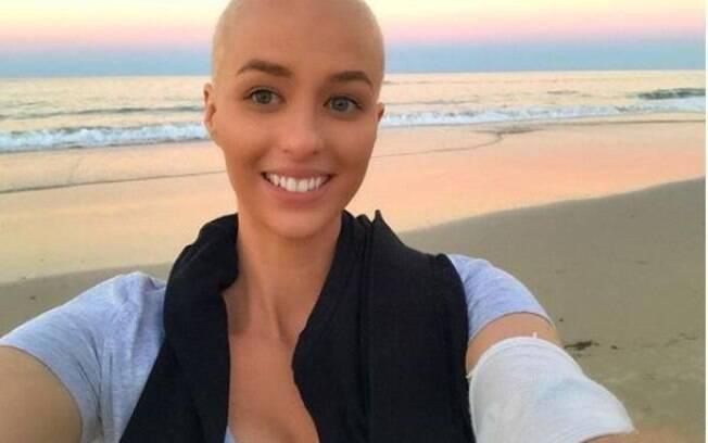 Quando viram o resultado do exame de McLennan, com câncer por todo o corpo, médicos acharam que ela não sobreviveria
