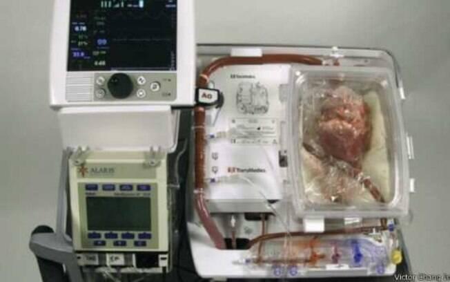 A máquina batizada de 'coração em caixa' permitiu aos médicos manter o coração de paciente morto próprio para transplante . Foto: Divulgação