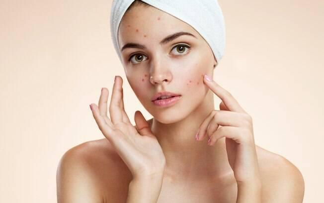 Estudo brasileiro descobriu uma causa genética para o aumento da incidência de acne entre o público feminino