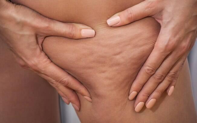 Apesar de não existir apenas um método 100% eficiente para eliminar celulite, há formas de melhorar os furinhos na pele
