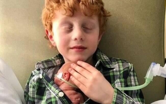 O amor do irmão mais velho com o pequeno Mikey emocionou pessoas do mundo todo nas redes sociais