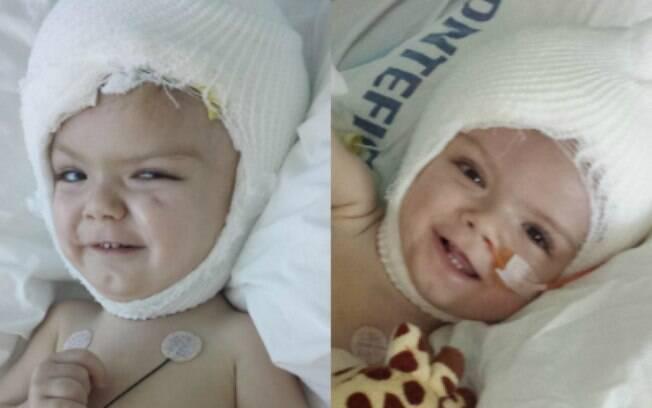 Anias (esq.) e Jadon (dir.) tiveram algumas complicações pós a cirurgia, mas se recuperaram e estão estáveis desde então