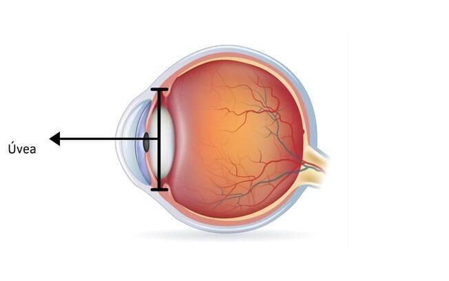 Ilustração mostrando a localização da úvea no olho humano