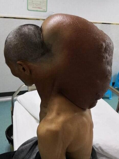 Tumor no pescoço do indiano pesava quase 15 quilos