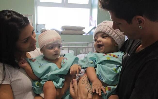 Gêmeas siamesas separadas por cirurgia no DF recebem alta de hospital após 36 dias