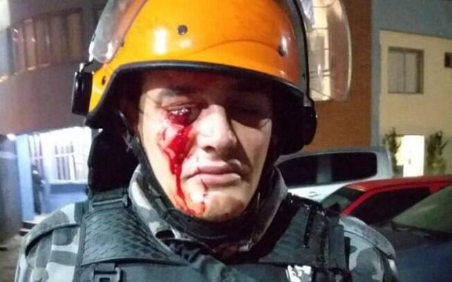 PM tentava dispersar manifestação quando foi atingido no olho