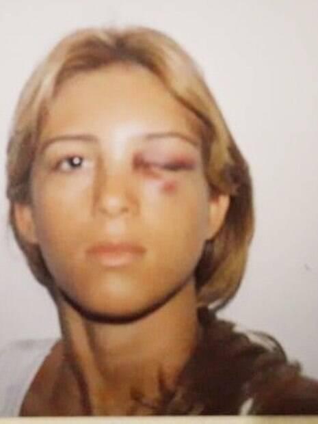 Nadja Pessoa após ter sido agredida pelo seu ex