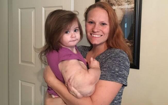 Médicos descobriram algo de errado com a menina durante um ultrassom da mãe, Joni Gatlin, com 15 semanas de gestação