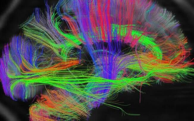 Tempo de estudo: quanto mais conexões entre os neurônios maior a propensão em contornar as lesões cerebrais
