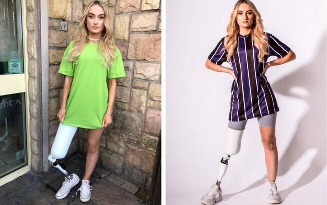 Bernadette foi diagnosticada com um câncer raro e, para continuar vivendo, precisou que a perna direita fosse amputada