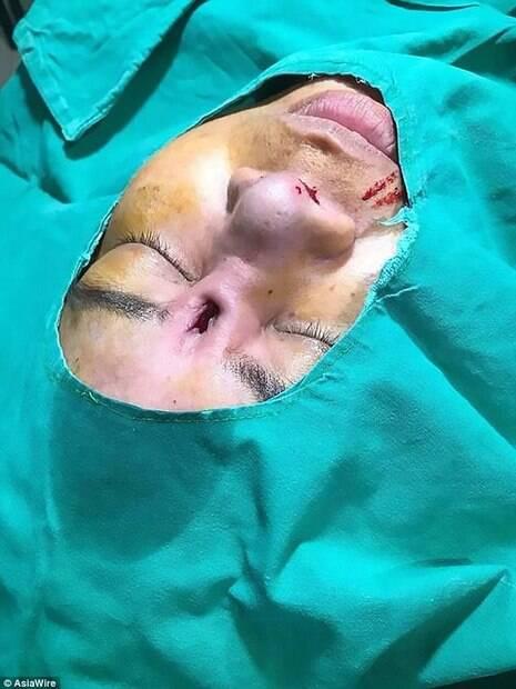 Especialistas estudam como reparar os danos do procedimento