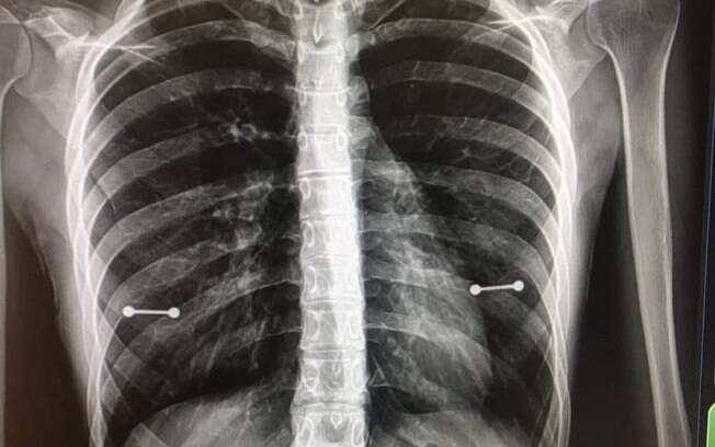 A publicação do raio X que mostra o piercing nos mamilos de Sydney fez sucesso nas redes sociais